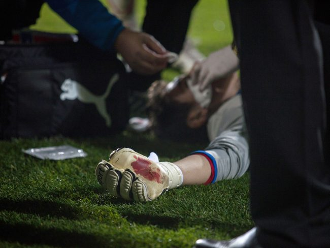Silviu Lung goalkeeper from Astra Giurgiu suffered a collision with another player in a game played in Galați, Romania on October 20th, 2012.